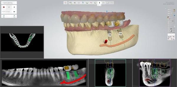 ape提供牙科3D打印解决方案