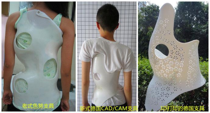 中国首例3D乐虎国际娱乐脊柱侧弯支具在我工作室诞生!