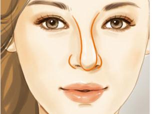 3D打印隆鼻 从概念引入实践(图)