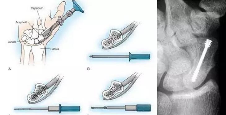 3D打印辅助舟状骨骨折精确经皮内固定手术