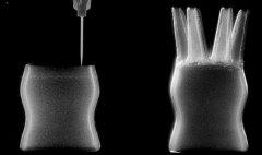3D打印技术在医疗领域大显身手 真实案例