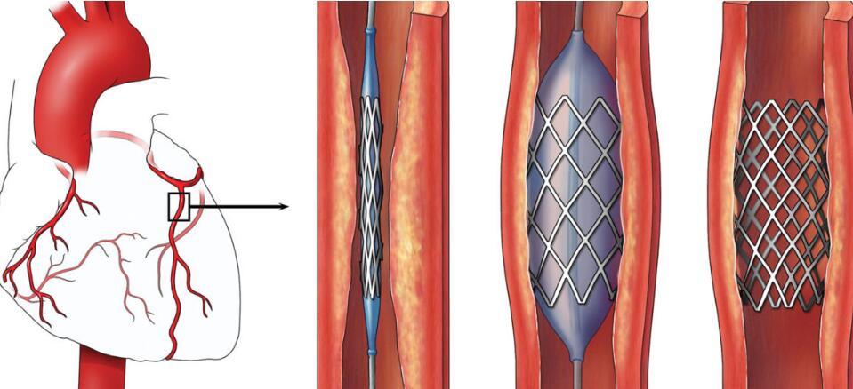 荷兰科学家3D打印可降解、自扩张的血管支架研发进行时