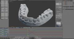 3D打印自制牙套:跟高价牙医说拜拜!(双语)