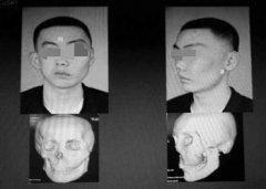 3D打印技术还原小伙正常的脸