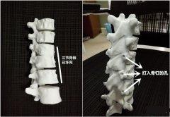【创业英雄】天使融资400万 西安博恩生物居然3D打印人造骨了