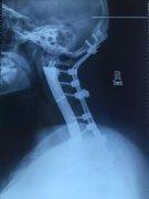 长征医院用3D打印将患者全颈椎椎体换为钛合金属全球首例