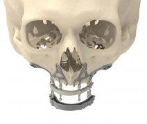 <b>CADSkills开发3D打印钛颌植入物可以减少手术时间</b>
