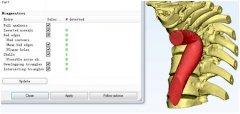 三的部落3D打印助力脊柱后凸矫正手术术前规划