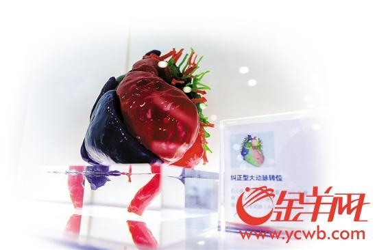 广州医生3D打印一颗心 救回2岁宝宝一条命