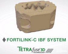 RTI Surgical推出世界首款用于椎间融合术的3D打印聚合物材料
