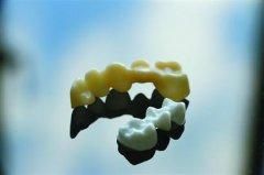 ca88会员登录|ca88亚洲城官网会员登录,欢迎光临_上海应用技术大学创新陶瓷材料ca88会员登录 一颗假牙打出来