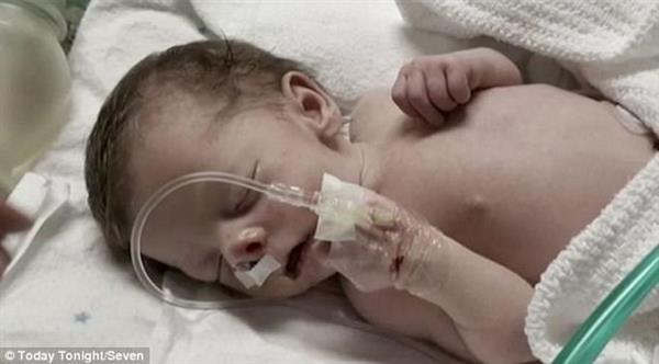 ca88会员登录|ca88亚洲城官网会员登录,欢迎光临_ca88会员登录的颅骨模型挽救鼻子被骨头阻塞的澳洲婴儿
