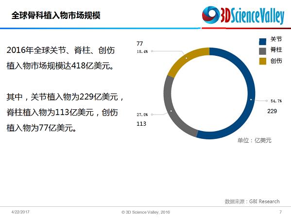 ca88会员登录|ca88亚洲城官网会员登录,欢迎光临_3d printed implant 4