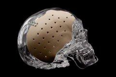 3D打印的PEKK植入物对整形外科应用具有卓越的抗菌性能