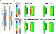 在特殊情况下,3D打印钛网支架比目前的骨移植治疗更好