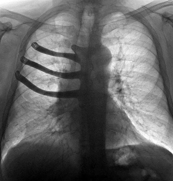 ca88会员登录|ca88亚洲城官网会员登录,欢迎光临_ca88会员登录胸部假体有助于威尔士男子从巨大肿瘤中康复
