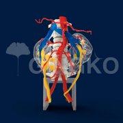 武汉银杏医疗,推出全彩3D打印马蹄肾病例模型