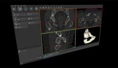 Materialize成为首家被FDA批准用于医疗3D打印的软件公司