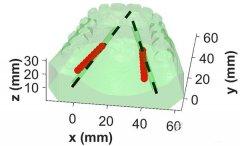 3D打印帮助绘制动脉并改善口腔手术的结果
