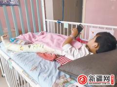 4岁孩子发育性髋关节脱位导致跛行 3D打印助力精准治疗