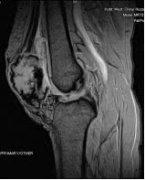 华西医院完成世界首例3D打印髌骨假体植入
