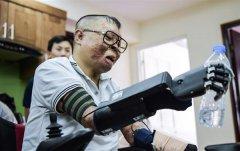 <b>飞机坠毁后,越南飞行员接收3D打印仿生手</b>