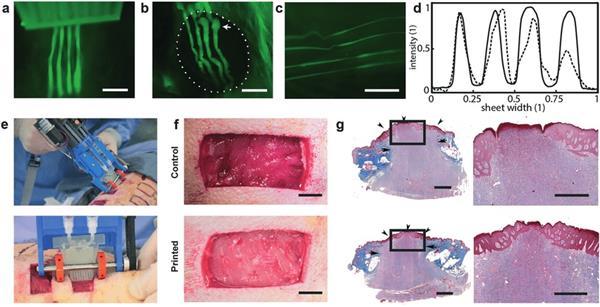 UoT开发手持式皮肤3D打印机,用于快速修复深度伤口