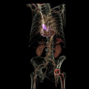 通用电气Healthcare软件简化了病人护理和医疗模型3D打印
