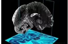 深度解析3D打印技术与神经系统疾病
