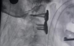 西安交大发布3D打印可动人工颈椎假体等科研成果