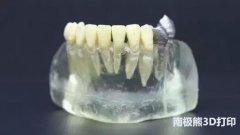 <b>【深度解析】3D打印在牙科种植中的应用</b>