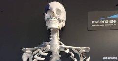 3D打印骨科模型技术标准专家共识