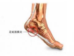 3D扫描+3D打印足矫形器,改善由于足底筋膜炎引起的足跟痛