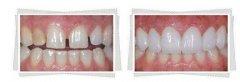 3D打印技术快捷完成牙冠修复