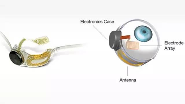 科学家3D打印仿生眼睛原型,未来天可以恢复视力