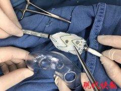 大妈大动脉撕裂命悬一线,医生用3D打印技术救了她一命