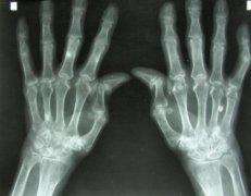 <b>3D打印活组织有望治疗关节损伤</b>