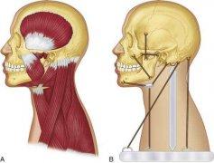 偏颌患者的福音!3D打印技术可治疗偏颌了,术前术后误差小