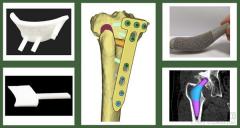 上气集团直投影为医疗完成Pre-A轮融资,共谋划骨科医疗器械市场