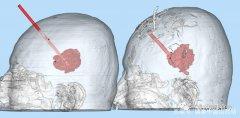 山西大医院3D打印技术精准穿刺治疗脑出血
