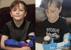 父爱如山:他自学3D打印技术为儿子打印9个假肢
