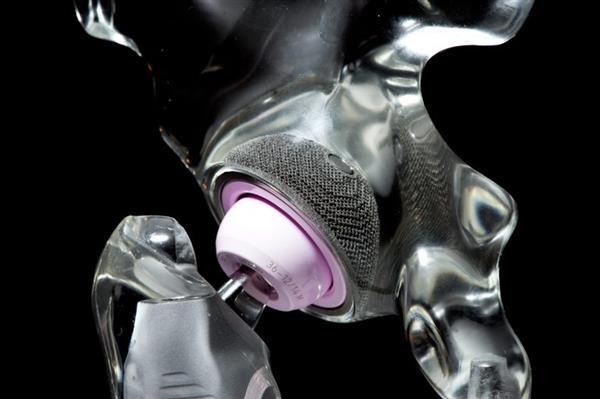 美国HSS和利马公司在纽约开设骨科植入物3D打印实验室