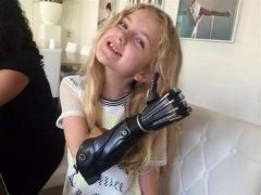 Open Bionics获466万英镑投资为儿童3D打印仿生手臂