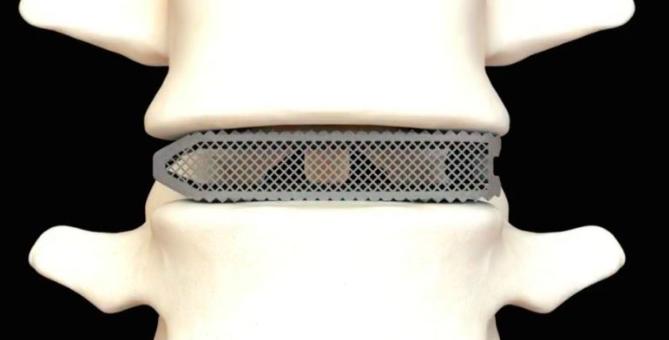 外科医生植入世界上第一个3D打印的Aries L椎体间融合器