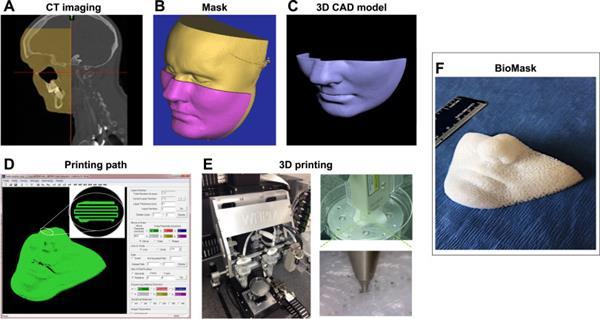 生物3D打印BioMask可以快速治愈面部皮肤伤口