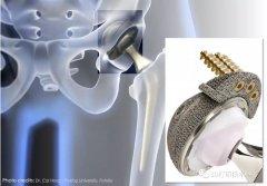 医疗:PEEK相较金属植入物的优势与不足
