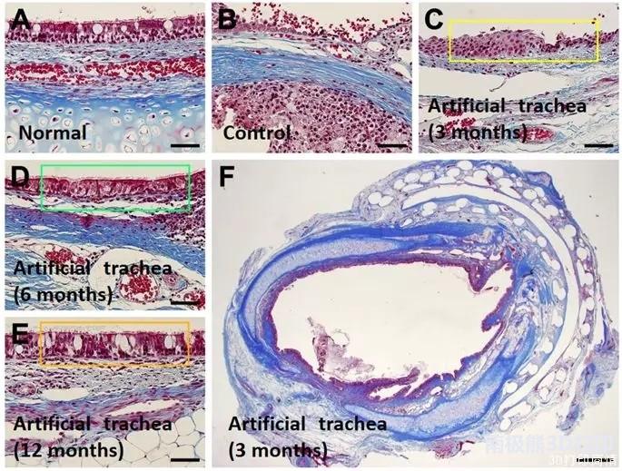 韩国研究人员用上皮细胞和软骨细胞3D打印气管
