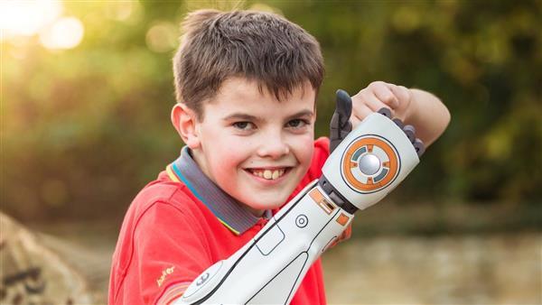 Open Bionics在美国推出经医学认证的3D打印仿生手臂