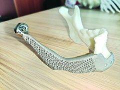 "<b>华中地区首例3D打印钛合金""下颌骨""移植成功</b>"