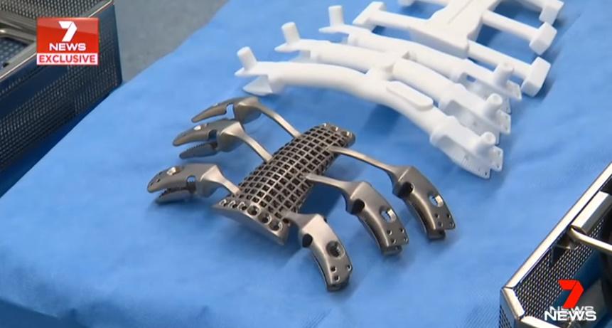 澳大利亚卡车司机成功完成胸骨3D打印钛植入物替换术